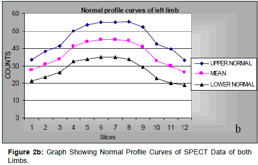 diabetes-metabolism-Normal-Profile-Curves-SPECT