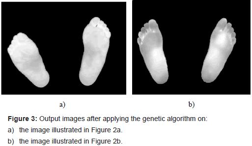 diabetes-metabolism-applying-genetic-algorithm