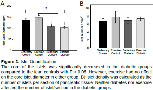 diabetes-metabolism-core-islet-diameter