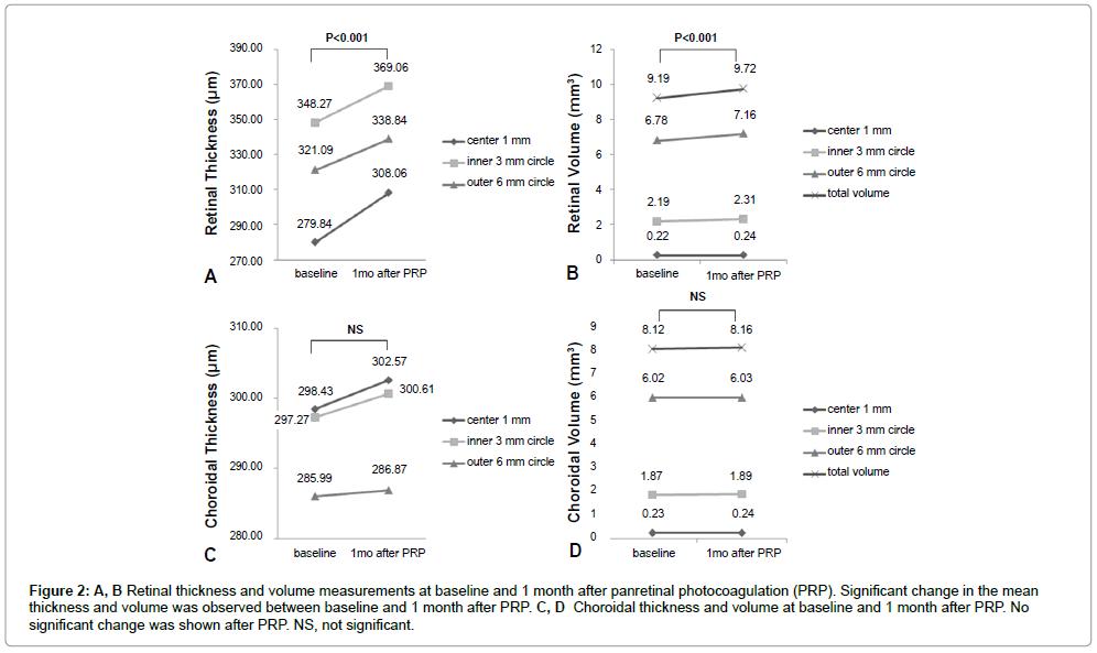 diabetes-metabolism-panretinal-photocoagulation