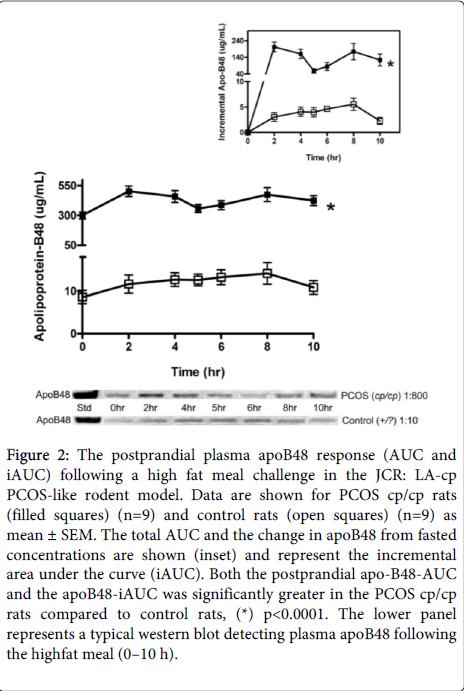 diabetes-metabolism-postprandial-plasma