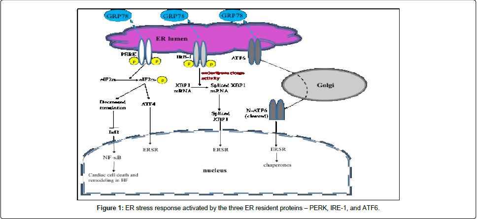 diabetes-metabolism-stress-response