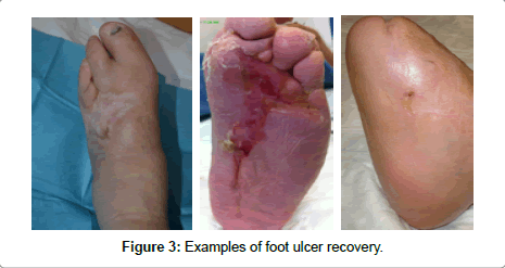 diabetes-metabolism-ulcer-recovery