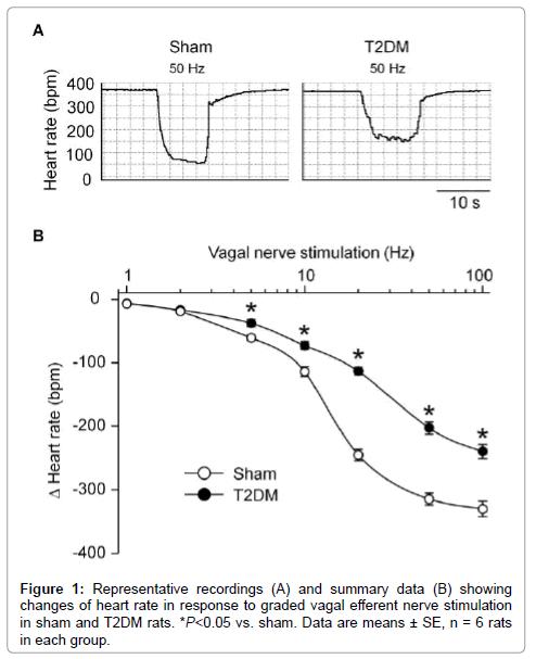 diabetes-metabolism-vagal-efferent