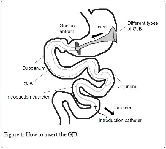 diabetic-complications-medicine-insert-GJB