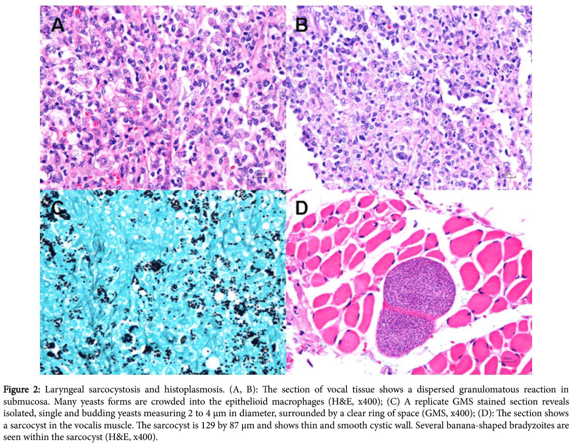 diagnostic-pathology-Laryngeal-sarcocystosis-histoplasmosis