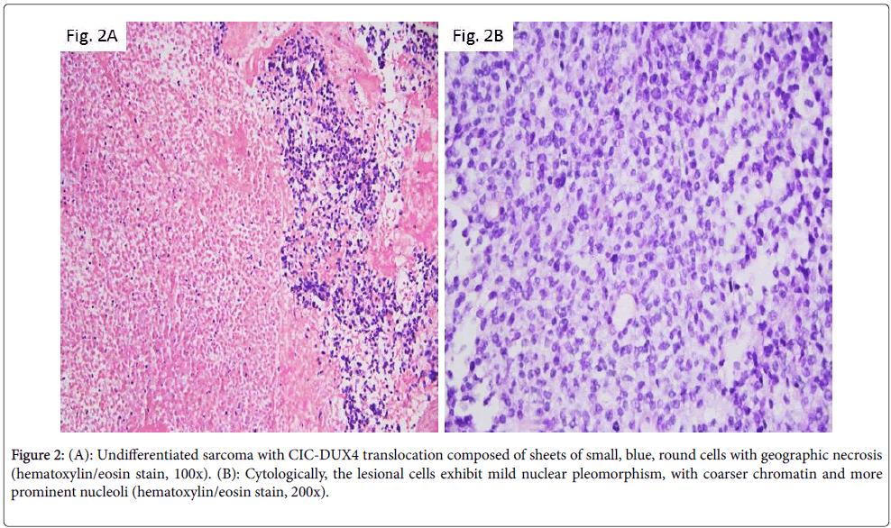 diagnostic-pathology-blue-lesional