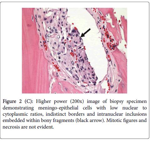 diagnostic-pathology-bony-fragments