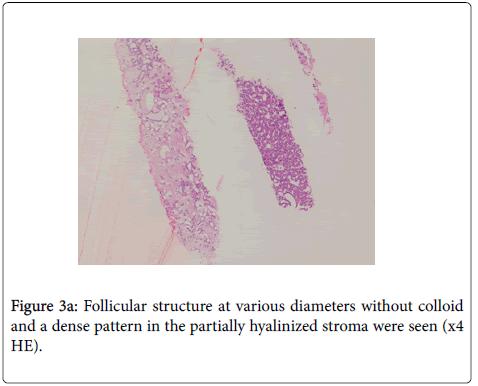 diagnostic-pathology-diameters-stroma