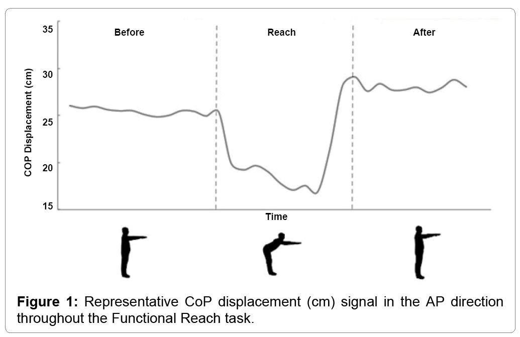 disease-parkinsonism-representative-cop-displacement