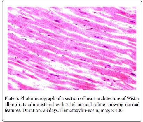drug-metabolism-toxicology-heart-leaf
