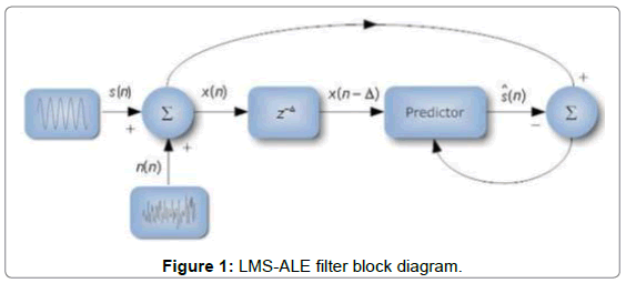 electrical-electronic-systems-LMS-ALE-filter-block