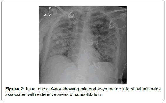 emergency-medicine-initial-chest-bilateral