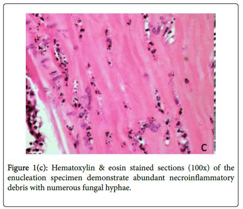 emerging-infectious-diseases-Hematoxylin-eosin