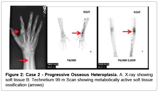 endocrinology-metabolic-syndrome-Progressive-Osseous