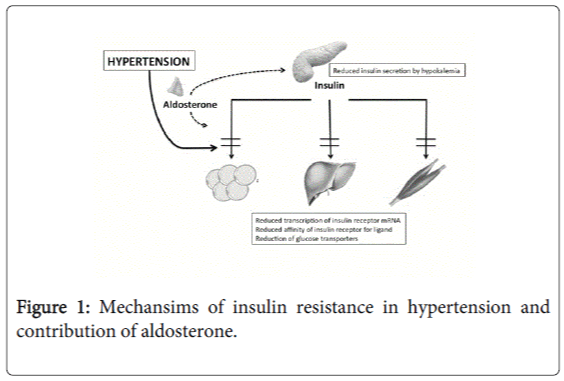 endocrinology-metabolic-syndrome-insulin-resistance