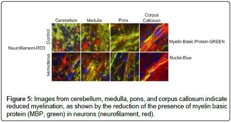 environmental-analytical-toxicology-cerebellum-medulla-pons