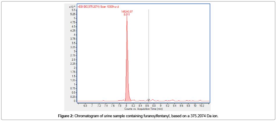 environmental-analytical-toxicology-urine-sample