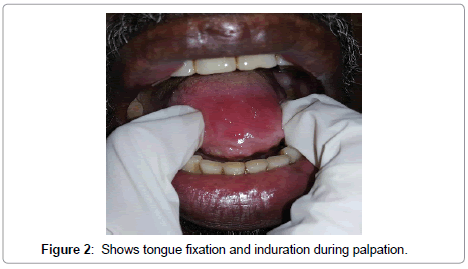 enzyme-engineering-tongue-fixation