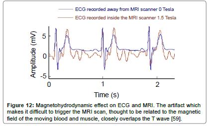 fluid-mechanics-Magnetohydrodynamic-artifact-scan