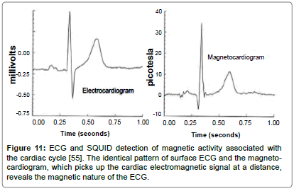 fluid-mechanics-magnetic-magnetocardiogram-signal