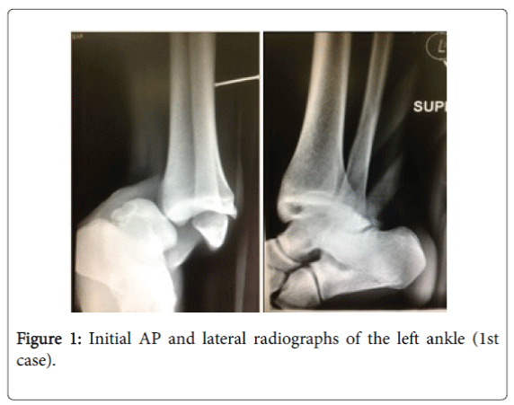 foot-ankle-lateral-radiographs-left-ankle