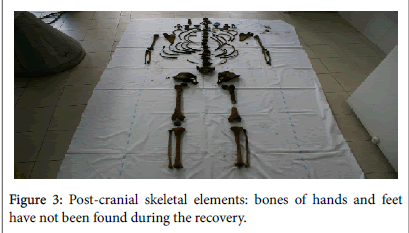 study of skeletal remains solving a homicide case with forensic