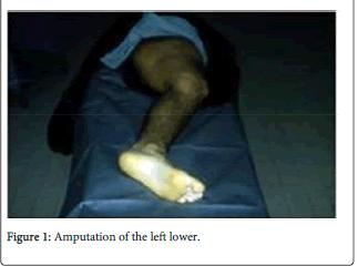 forensic-biomechanics-Amputation-left