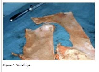 forensic-biomechanics-Skin-flaps