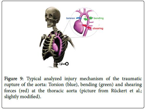 forensic-biomechanics-analyzed-injury