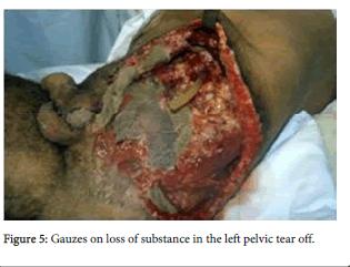 forensic-biomechanics-left-pelvic