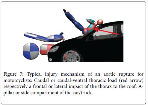 forensic-biomechanics-mechanism