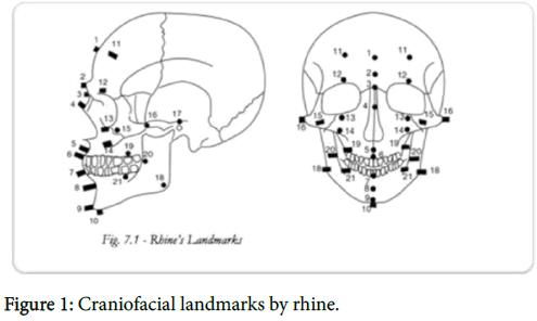 forensic-research-Craniofacial-landmarks-rhine