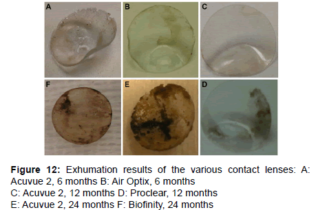 forensic-research-Exhumation-results-various-contact-lenses