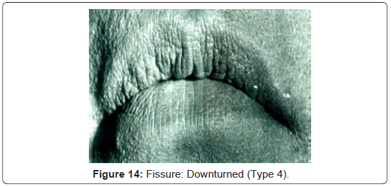 forensic-research-Fissure-Downturned