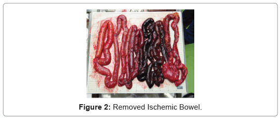 forensic-research-Removed-Ischemic-Bowel