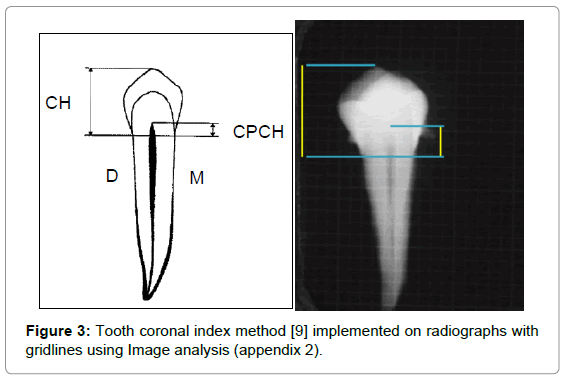 forensic-research-Tooth-coronal-index