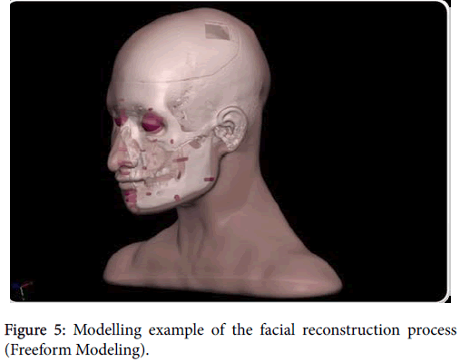 forensic-research-facial-reconstruction-process