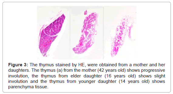 forensic-research-thymus-stained-HE