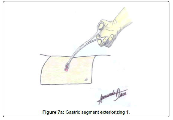 gastrointestinal-digestive-Gastric-segment-exteriorizing