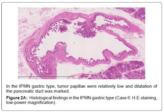 gastrointestinal-digestive-IPMN-gastric-type