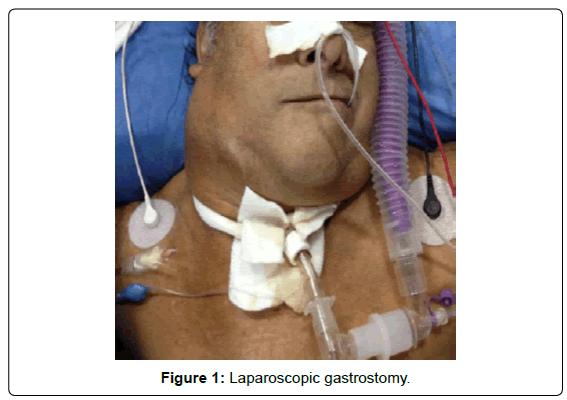 gastrointestinal-digestive-Laparoscopic-gastrostomy