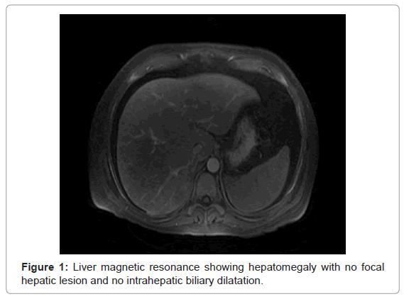 gastrointestinal-digestive-Liver-magnetic-resonance