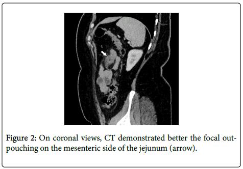 gastrointestinal-digestive-On-coronal-views