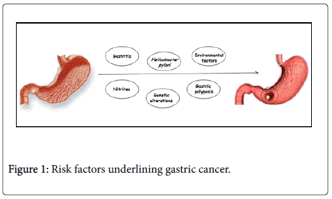 gastrointestinal-digestive-Risk-factors