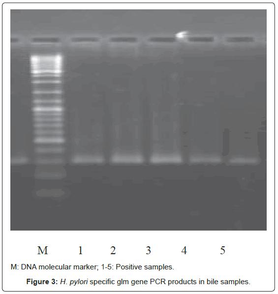 gastrointestinal-digestive-gene-PCR-products