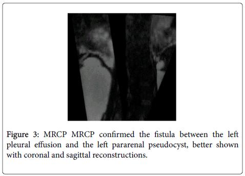 gastrointestinal-digestive-sagittal-reconstructions