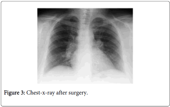 gastrointestinal-digestive-system-Chest-surgery