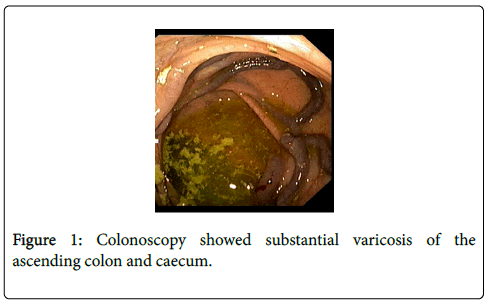 gastrointestinal-digestive-system-Colonoscopy-showed