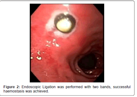 gastrointestinal-digestive-system-Endoscopic-Ligation